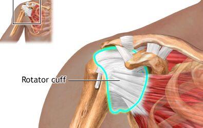 Degenerative Rotator Cuff Disorders & Shoulder Pain