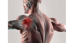 Shoulder Surgery & Rehab
