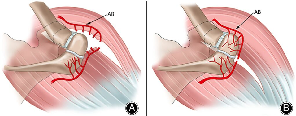 Reverse Shoulder Arthroplasty in Patients With OS Acromiale